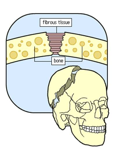 Fibrous or fixed joints